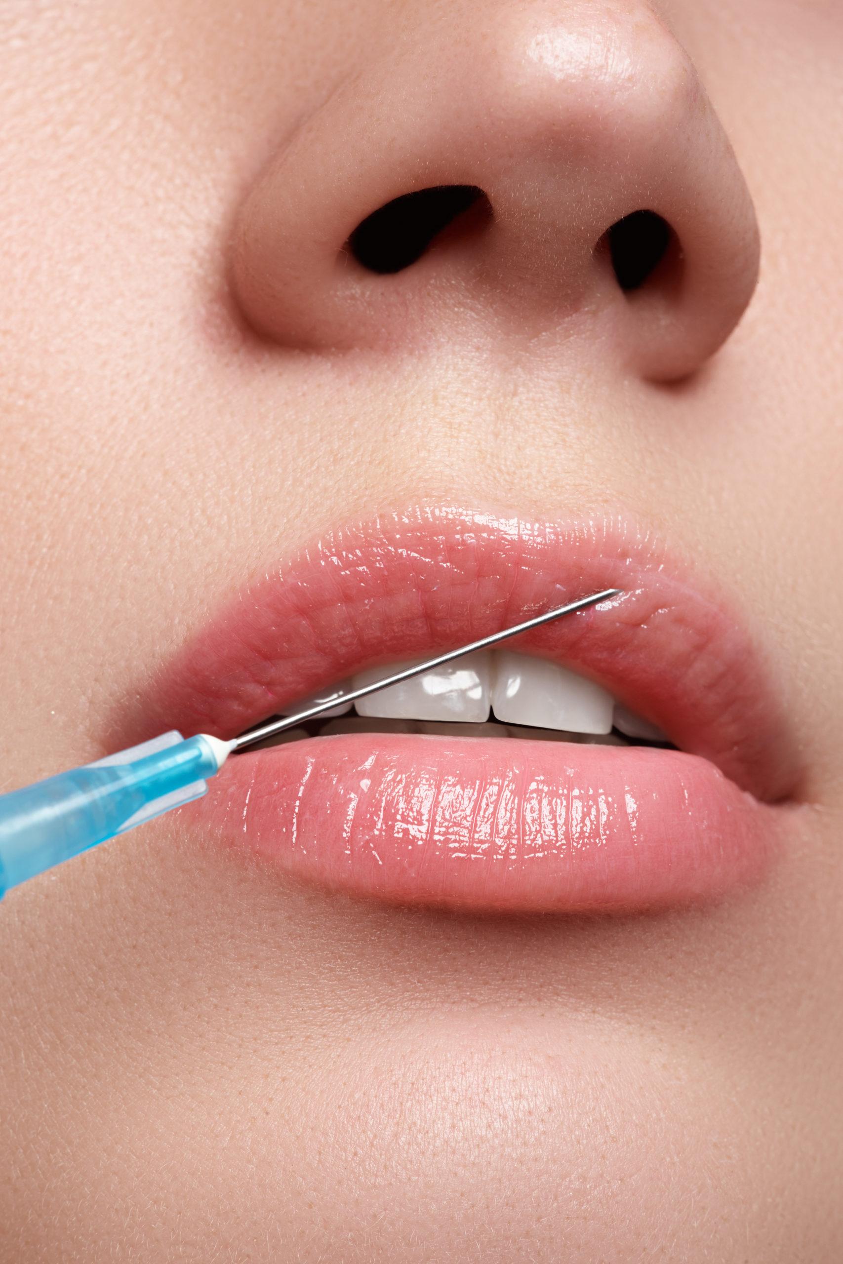 injection lèvres Franck SIWE esthétique bapaume